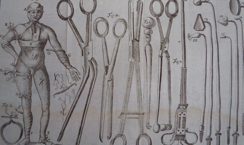 La scena operatoria: dolore e aspettative di vita dall'Ancien Régime a Gallucci