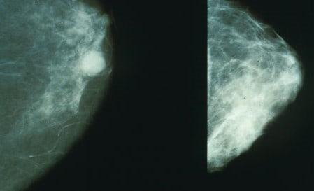 Prevenzione al femminile, in Veneto in arrivo 24 super mammografi