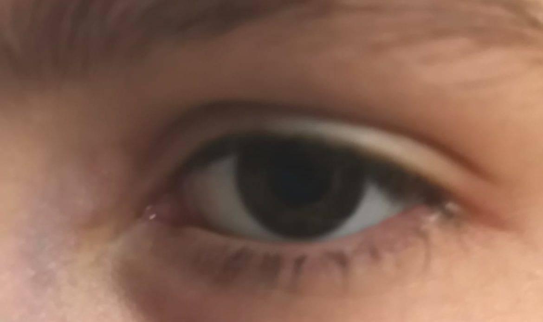 Occhio al glaucoma, patologia subdola